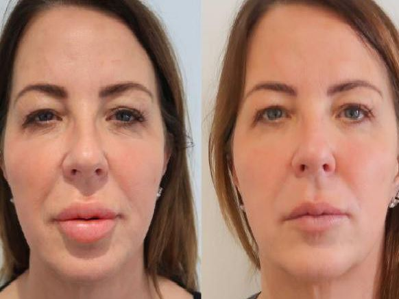 Scottish woman tells of three year nightmare after she developed 'trout pout' after lip fillers