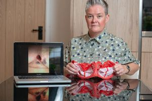 Lynne McConnell with a photograph of her chest wound. Picture: SWNS