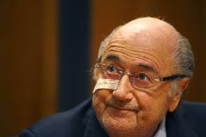 Blatter's fighting talk was delivered while still sporting a strip of surgical tape on his right cheek. Picture: AP