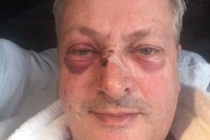 Nick Nairn tweeted an image of his injuries following the assault. Picture: Twitter/@NickNairn