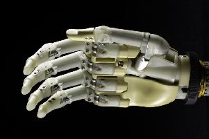 The bionic hand is an example of Scotland's culture of innovation, writes McKee. Picture: National Museums of Scotland