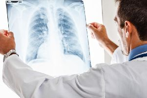 Glasgow sees more cases of tuberculosis than anywhere else in Scotland (Photo: Shutterstock)