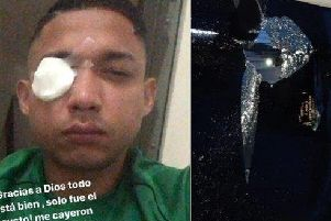 Emilio Izaguirre was hit in the eye by glass after bus windows were smashed. Picture: contributed