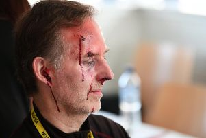 Sporting nasty-looking cuts to my forehead, ear, eyebrow and nose, a slurp of stage blood  zesty mint flavour and safe for use in the mouth the Los Angeles-produced concoction assured  added to the gore.