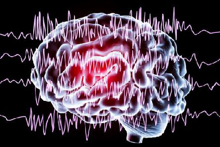 Epilepsy affects around 600,000 people in the UK