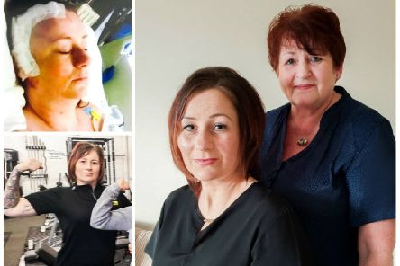 Lisa Ross initially thought she had a migraine but doctors soon discovered she had a brain aneurysm behind her right eye, which ruptured and brought on a stroke. Pictures: SWNS