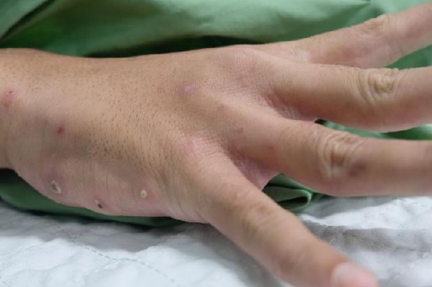Everything You Need To Know About Nhs Lothian Scabies