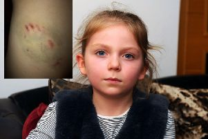 Orla Thomson (7) was bitten by a German Shepherd called Apollo owned by police officer Chris Smith