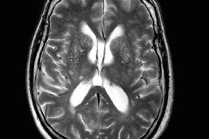 Depression linked to damaged brains, say Scots scientists ...