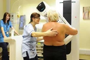 NHS chief signs up for fundraiser after breast cancer diagnosis