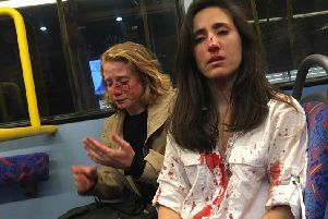 Melania and Chris were attacked on a night bus. Picture: Facebook
